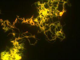 Микобактерии55